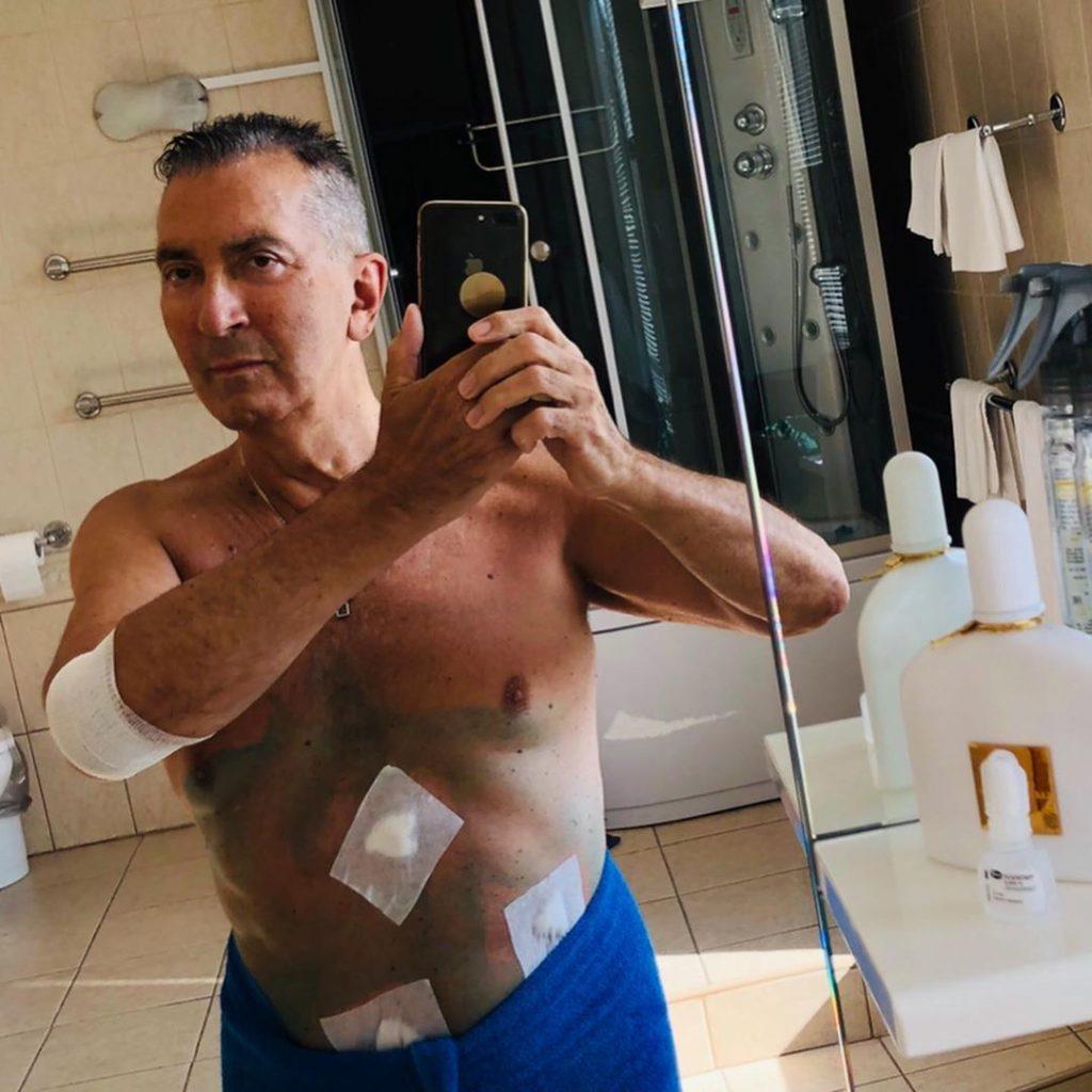 Буйнов напугал поклонников фото после операции